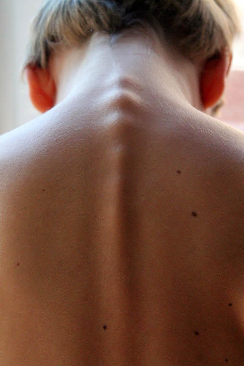 Fisiolike Chieri TO - Clinica della colonna - Mal di schiena