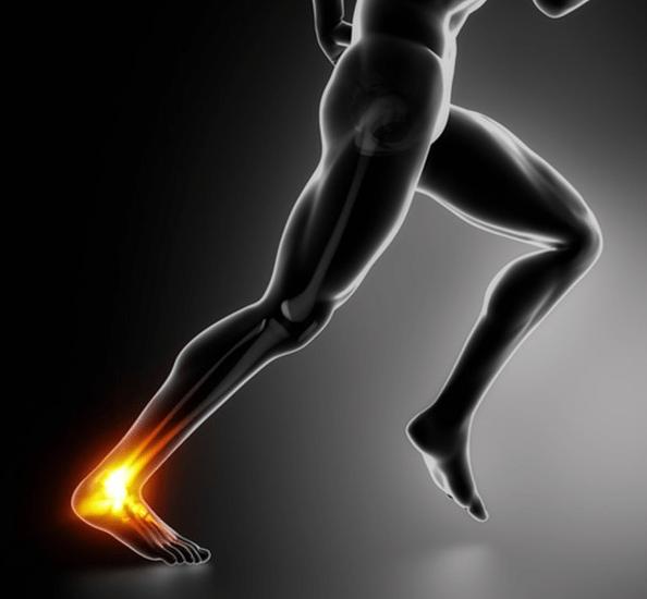 tendinopatia nei runner