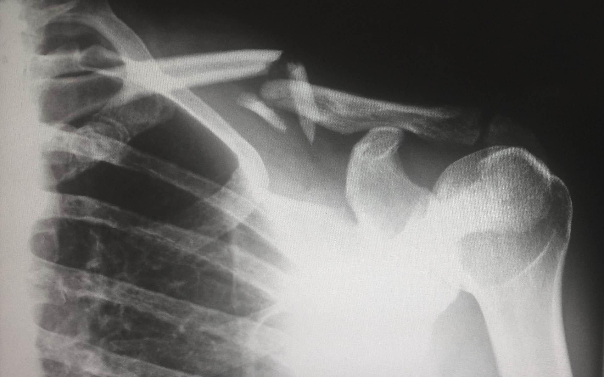clinica della spalla Fisiolike Chieri Torino